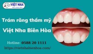 Trám răng thẩm mỹ tại Việt Nha Biên Hòa